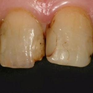 Dents dévitalisées - Anciens soins résine - Colorations
