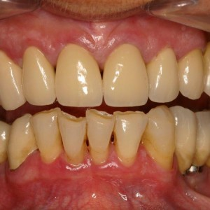 Bridge sur dents naturelles - Bridge sur implants