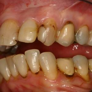 Dents abimées, jaunies, anciens soins inadaptés
