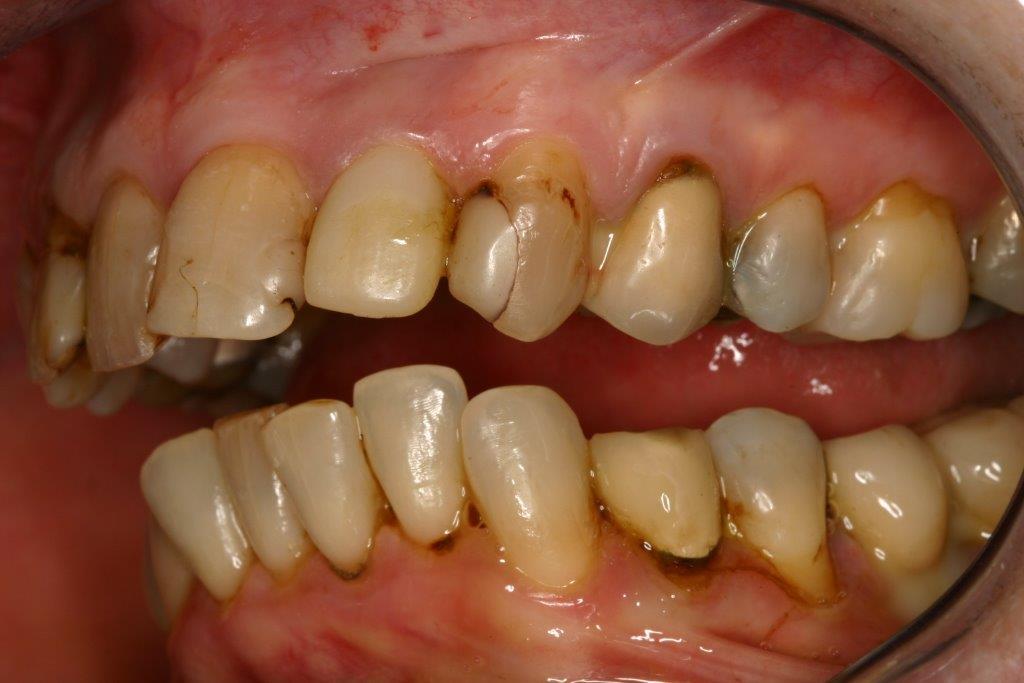 http://dr-bilger-jean-jerome.chirurgiens-dentistes.fr/cabinet-dentaire-nice/wp-content/uploads/2013/09/4a-couronnes-avant.jpg