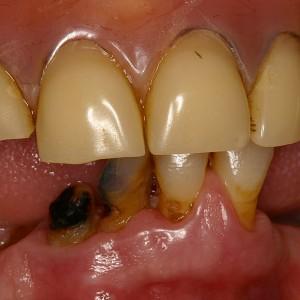 Dents absentes et à extraire - Dentier usés haut