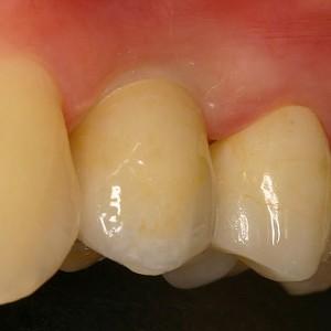 Dent Zicorne sur implant et couronne Zicorne sur dent naturelle
