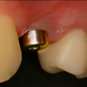 Implants avec pilier de cicatrisation et dent provisoire sur dent naturelle