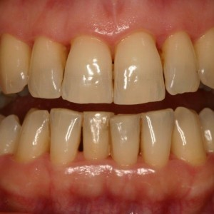 Maladie Parodontale  :  avant traitement