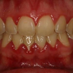 Maladie Parodontale Gencive gonflées et rouges