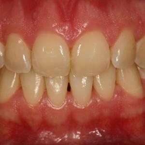 Traitement parodontale. Gencives saines et roses
