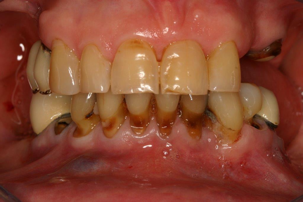 dents us es dents absentes cabinet dentaire dr jean j r me bilger nice. Black Bedroom Furniture Sets. Home Design Ideas